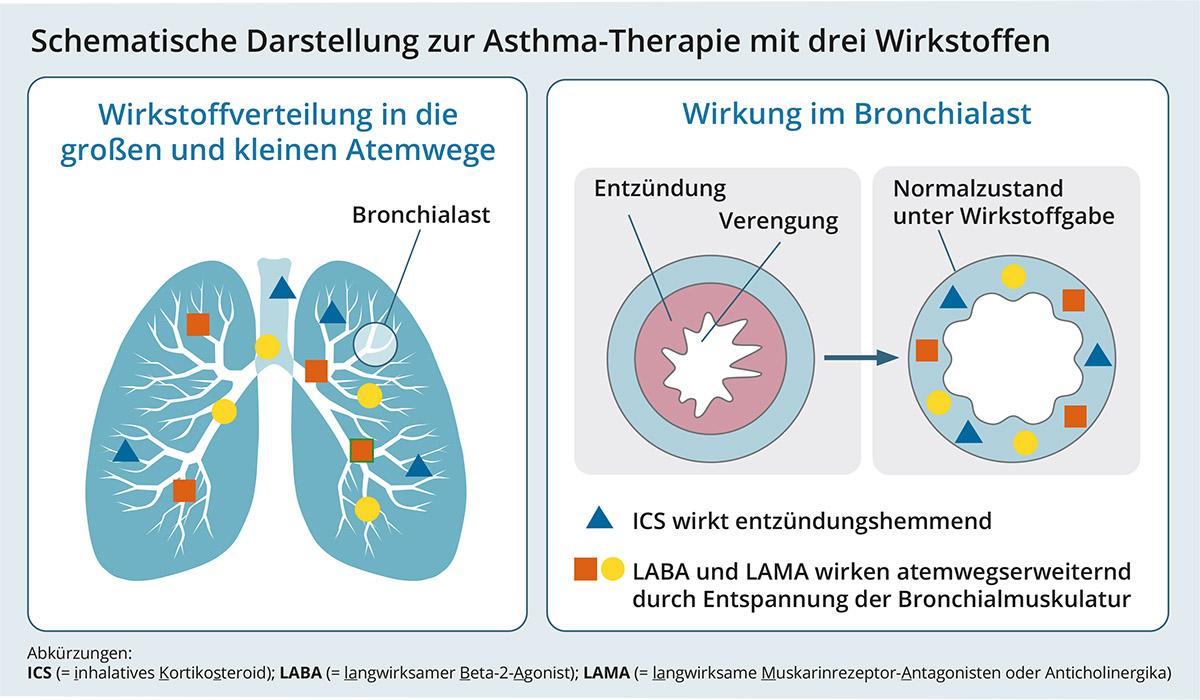Schematische Darstellung zur Asthma-Therapie mit 3 Wirkstoffen